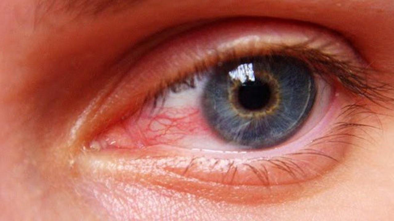 eye stain